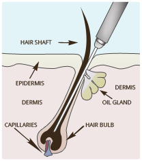 Electrolysis Hair Removal Cary